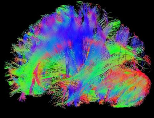 My Opinion on driving Neuroplasticity